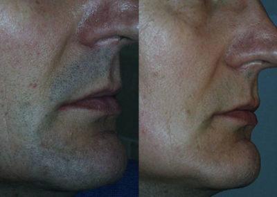 arc-szortelenites-24