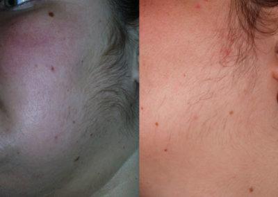 arc-szortelenites-4