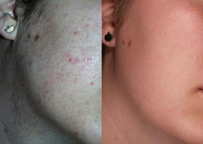 arc-szortelenites-11