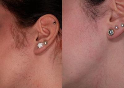 arc-szortelenites-15