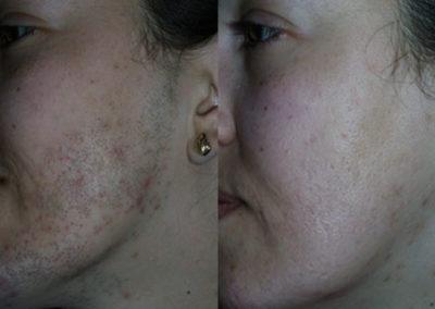 arc-szortelenites-17