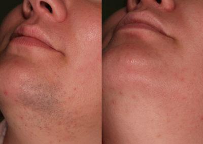 arc-szortelenites-2