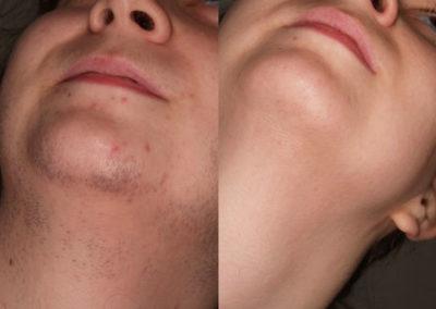 arc-szortelenites-21