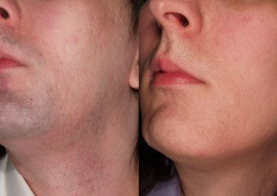 arc-szortelenites-25