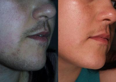 arc-szortelenites-3