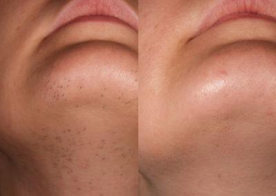 arc-szortelenites-5