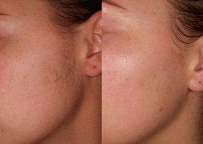 arc-szortelenites-6
