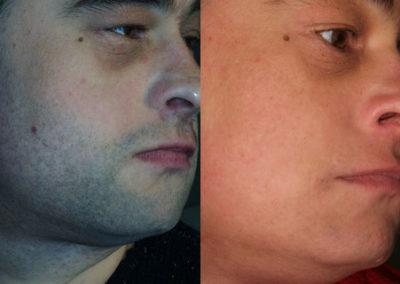 arc-szortelenites-7