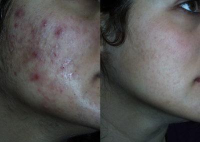 arc-szortelenites-9